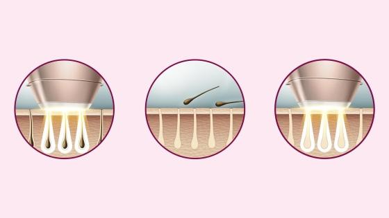 vellos, tratamientos, depilación, luz pulsada, dermatólogos